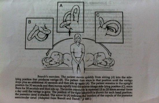 자가운동 방법 이석증 자가치료 , 병원 안가고 이거 하나면 끝